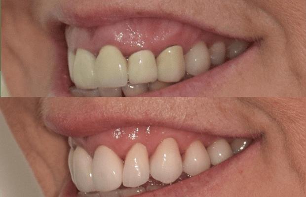 gum-surgery-cd-r1